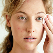 What to Do When You Have Acne and Dry Skin