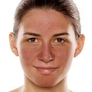 Skincare Tips for Calming Redness