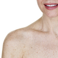 How to Deal with Sun Spots on the Body