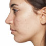 Types of Acne Breakouts