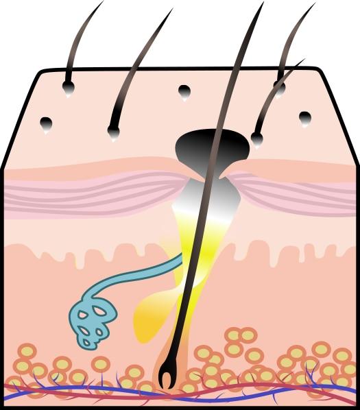 Diagram of a blackhead