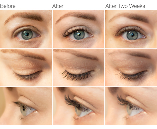 Eyelash Extensions Pros & Cons - Are They Right for You ...