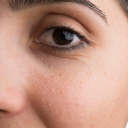 What Are These Tiny White Bumps on My Face? | Paula's Choice
