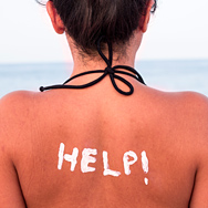 How to Take Care of Sunburned Skin