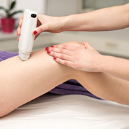 Does Laser Hair Removal Work?