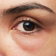 What Are Undereye Bags?